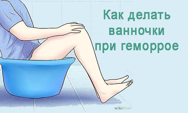 Как делают ромашковые ванночки при геморрое