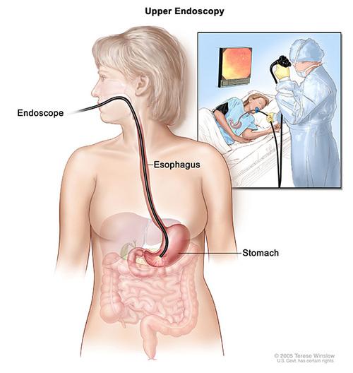 comment se déroule une fibroscopie digestive