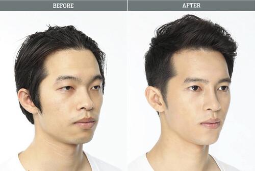 People: La chirurgie esthétique
