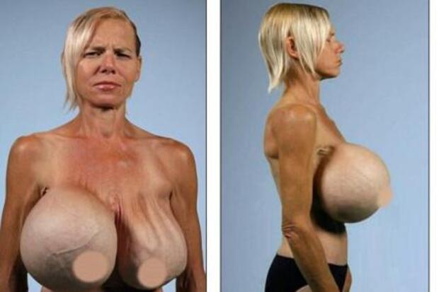 Elle fait retirer ses implants mammaires 20 ans après les avoir posés : L'horreur ..!!!
