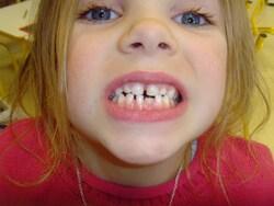 les dents