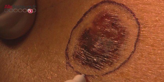 Avoir peu de grains de beauté sur le bras n'immunise pas contre le mélanome…