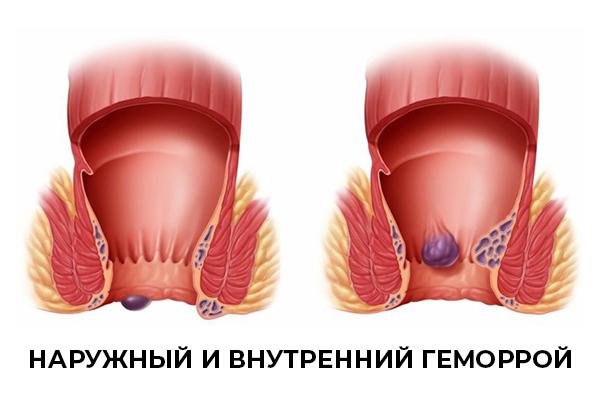 Геморрой после холецистэктомии