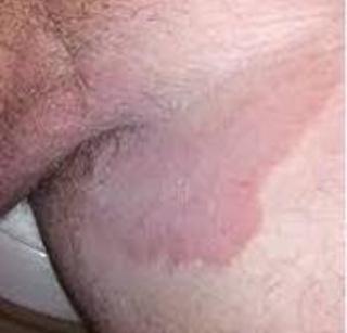 Obat gatal Selangkangan Dan Alat vital Pria paling ampuh