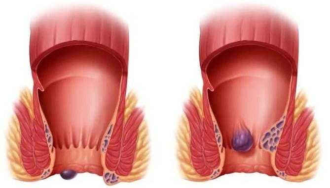 Трещины и кровотечение при геморрое лечение