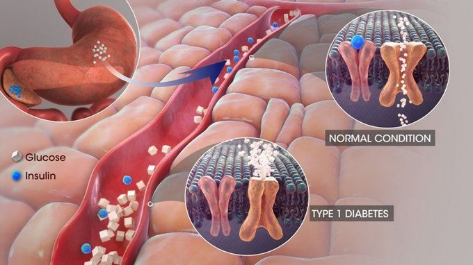 Сахарный диабет кишечные расстройства