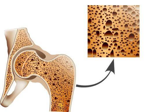 Il-prend-soin-des-os-et-previent-l'osteoporose-500x385