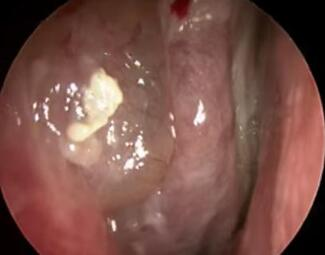Best Ways To Shrink Nasal Polyps