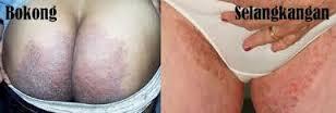 Obat Tradisional Manjur Untuk Mengatasi Gatal Jamur Di Sela Paha Dan Bokong