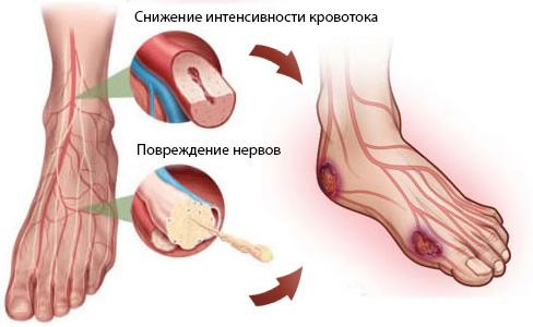 Диабетическое поражение сосудов фото