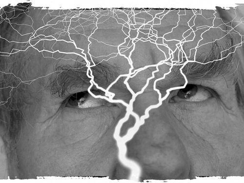 Le cerveau et l'épilepsie ,
