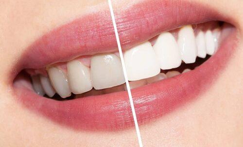 Hindari Bleaching Gigi, Cara Alami Putihkan Gigi