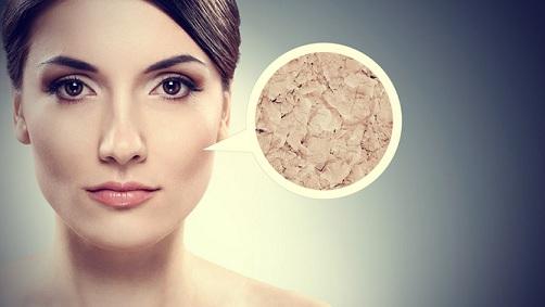 Comment entretenir une peau sèche