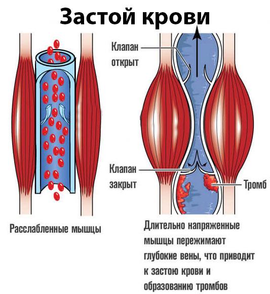 Геморрой от застоя крови в тазу