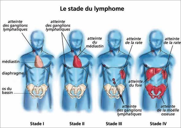 """Résultat de recherche d'images pour """"stade du lymphome"""""""