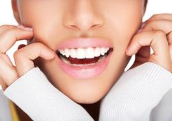 Les avantages  traitements dentaires?