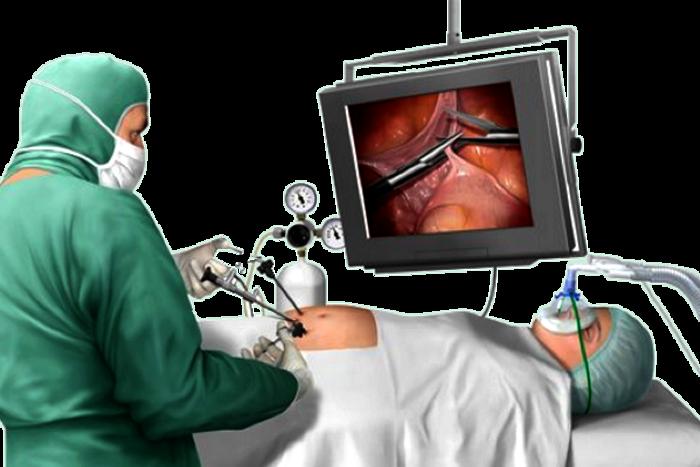 Lors d'une opération chirurgicale ???