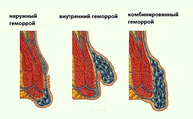 Внутренний наружный комбинированный геморрой 1 стадии