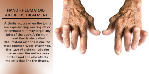 Homeopathic Treatment: Get the Best Treatment of Arthritis in Homeopathy at Imperial Clinics