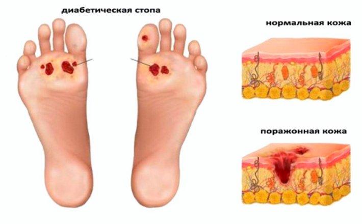Диабет стопы диагностика