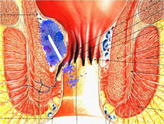 Геморрой лечение прокол