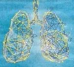 L'asthme sévère