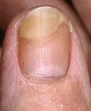 ongles striés qui se fendent