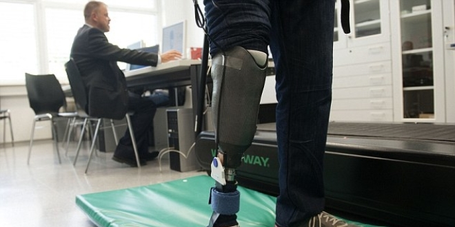 Des prothèses sensibles contre les douleurs fantômes