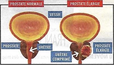 La prostate