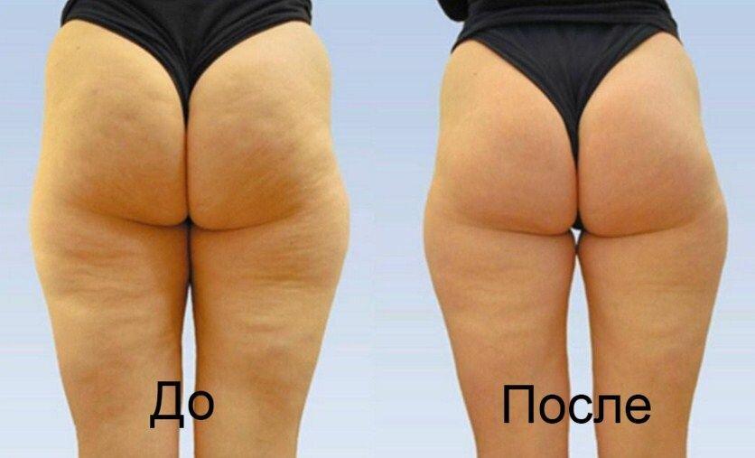 Медовый массаж против целлюлита до и после