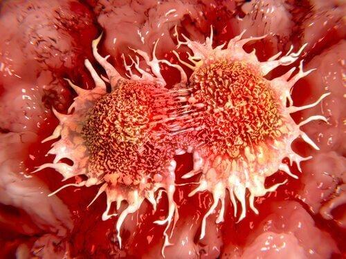 Therapie-anticancerigene-au-citron-congele