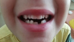 6zans et les dents de lait