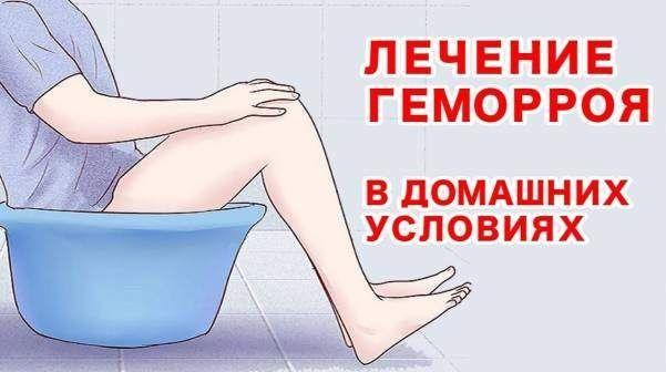 Геморрой и лечение в домашних условиях
