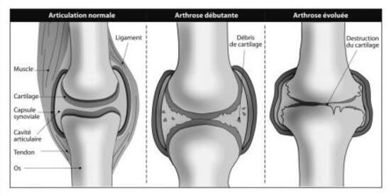 ARTHROSE : COMMENT LE CARTILAGE EST DÉTRUIT