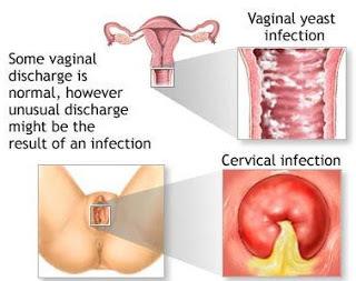 Nama Obat Untuk Vagina Sakit Dan Gatal Saat Kencing