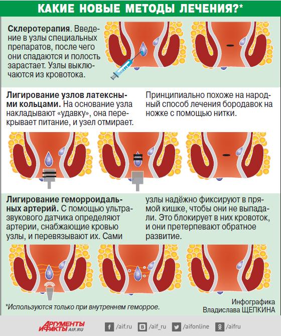 Виды геморроя методы лечения