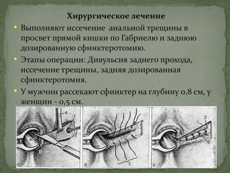 Трещина прямой кишки операция
