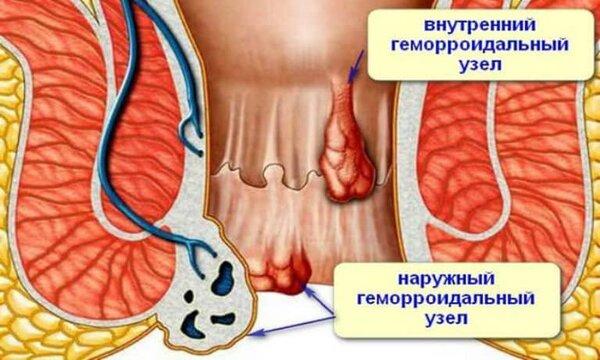 Тромбированного геморрой лечение в домашних условиях