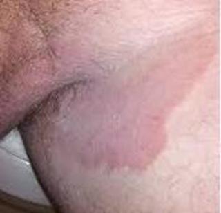 obat gatal jamur di kulit selangkangan yang sudah parah dan membandel
