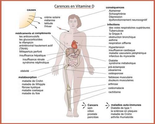 Signes d'une carence en vitamine D