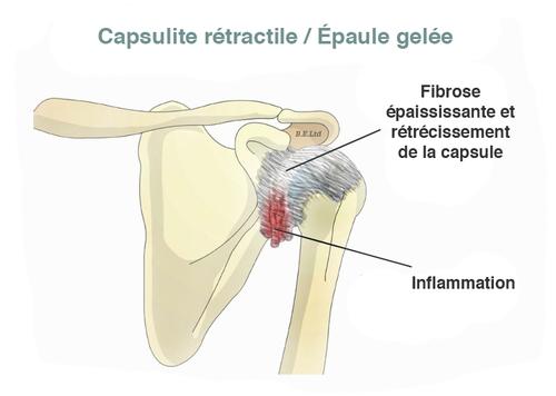 Capsulite rétractile dee épaules