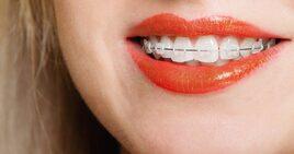 Astuce appareil dentaire #1