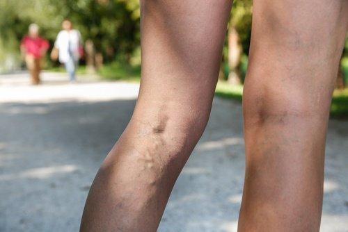 vous-souffrez-de-veines-varices-500x334