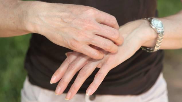 gratter les mains