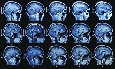Lien entre le fluorure et la baisse du QI chez les enfants