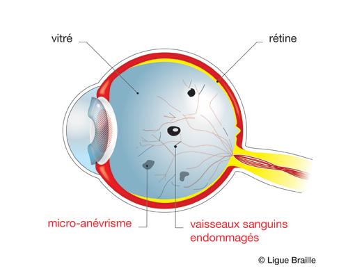 Schéma de l'oeil atteint de rétinopathie diabétique