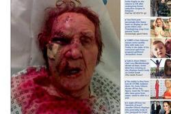 Victime d'un assaut vicieux, un homme en déambulateur est battu et laissé pour mort