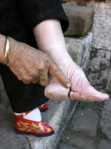Photo de pieds bandés après plusieurs années de bandages