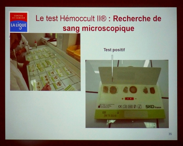 """Le """"Côlon Tour"""" de la Ligue contre le cancer de passage à Châtillon sur Seine..."""
