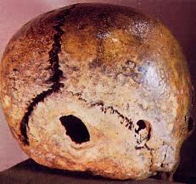 Les armes à feu et la chirurgie de la préhistoire